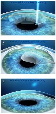 Le 3 fasi dell'intervento SMILE per la correzione dei difetti della vista