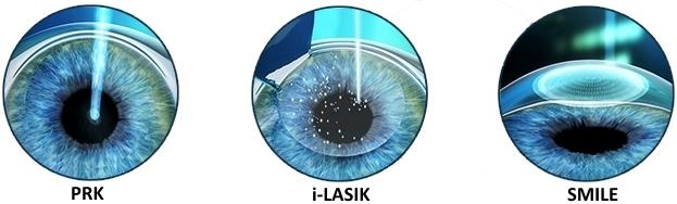 Le differenze di PRK, Femto-LASIK e SMILE per la correzione dei difetti visivi