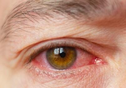 La congiuntivite può essere un sintomo del Coronavirus, se associata ad altri sintomi influenzali